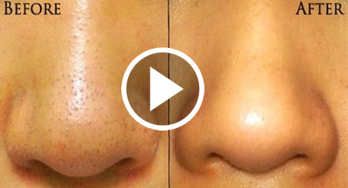 DIY-Blackhead-Remover-Original-Before-and-After-Picture-copy