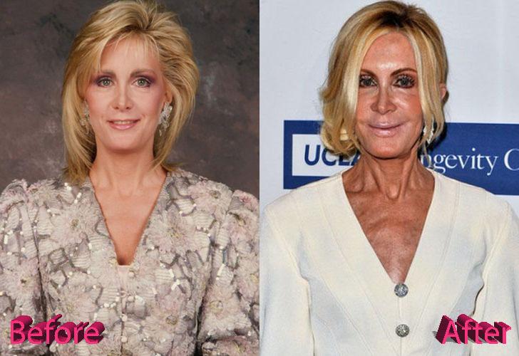 Joan-Van-Ark-Before-and-After-Surgery-Procedure