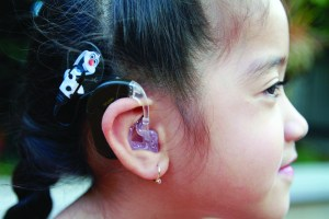 Cochlear implants, show above on kindergartner Taysia-Lee Alexander, have sparked a controversy in the United States among the deaf community. The Western Pennsylvania School for the Deaf is at the heart of the issue.