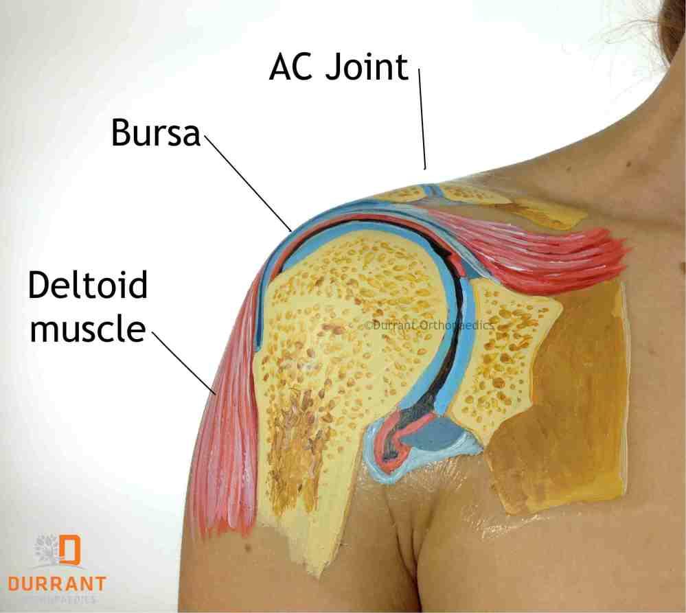 medium resolution of shoulder bursae over rotator cuff tears