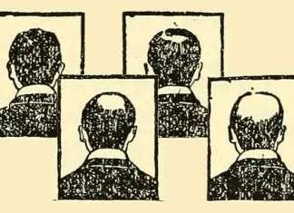 Kleine blanke mannen worden eerder kaal
