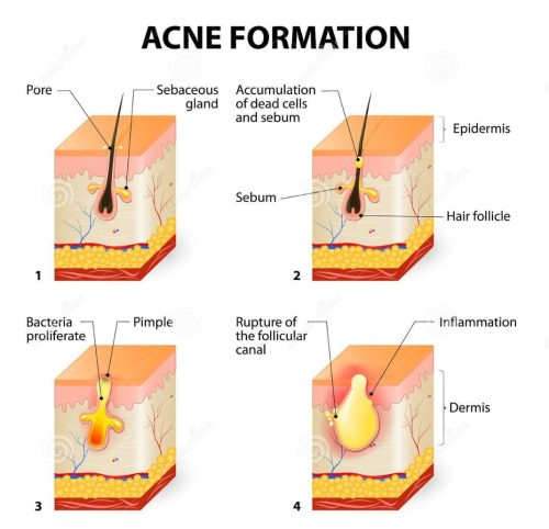 small resolution of image showing how acne forms