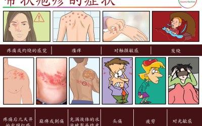 带状疱疹:症状、原因和自然治疗