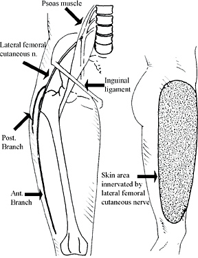 Lateral Femoral Cutaneous Nerve Entrapments