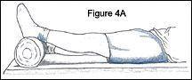 Anterior Cruciate Ligament Injury: Pre- and Postoperative