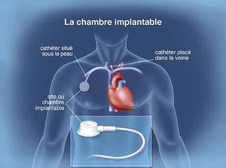 La chimiothrapie classique  Traitements mdicamenteux  Institut National Du Cancer