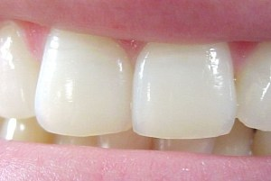 dentsblanches