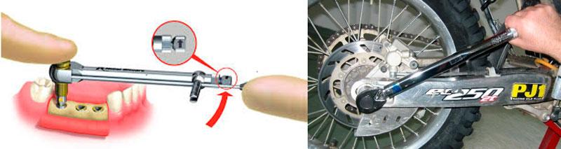 Figura 1: Ilustración del ejemplo de implantología bucal (izquierda) y una fotografía del montaje mecánico en una bicicleta (derecha) (Cortesía de NORBAR).