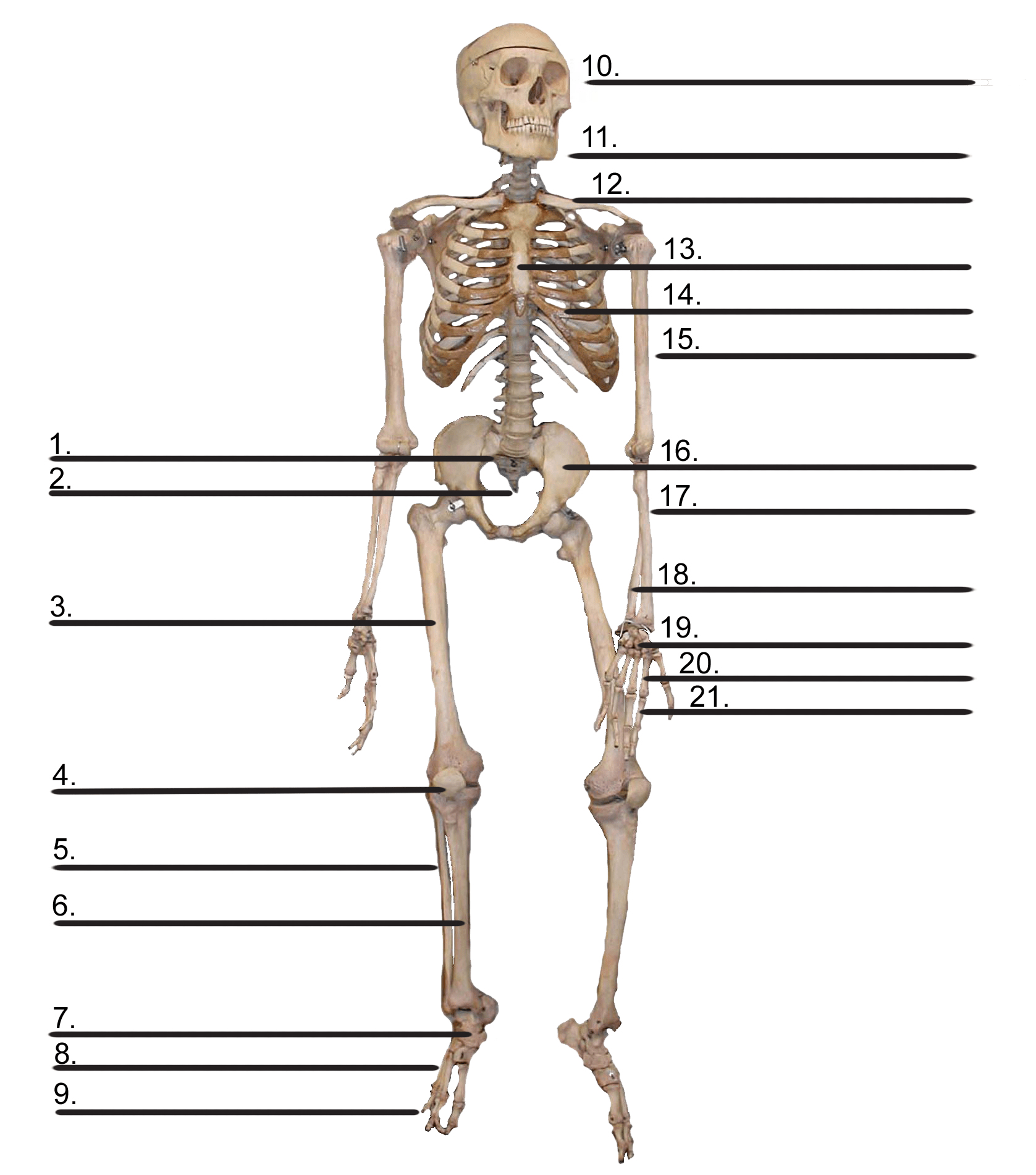 hight resolution of cybersurgeons diagram of bone with labels