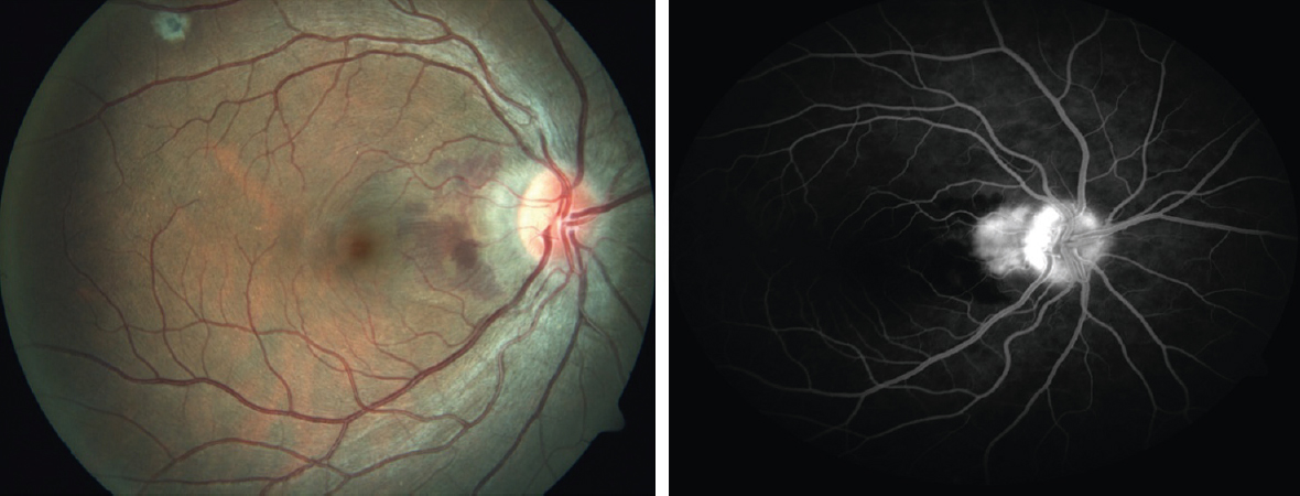 Uveitis: A search for a cause Ahmed AS, Biswas J - Taiwan J Ophthalmol