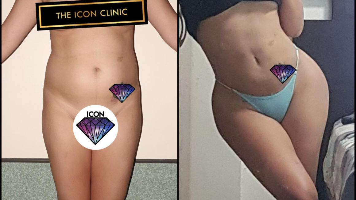 Fantastic way to Achieve your body goals this 2021 at The Icon Clinic