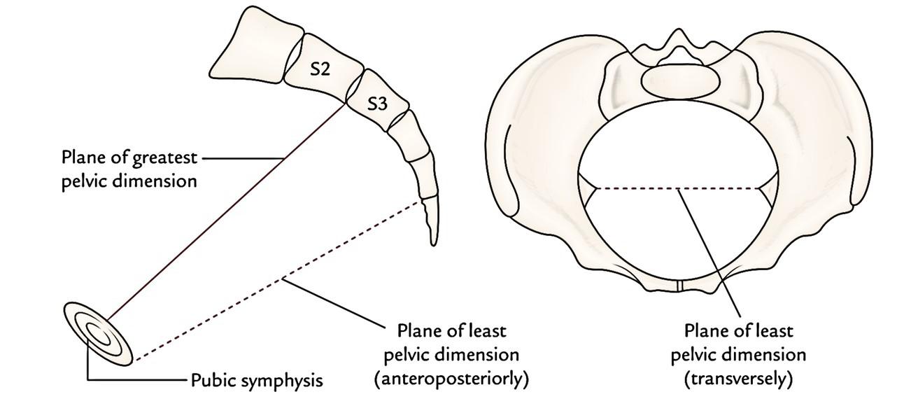 hight resolution of pelvic planes