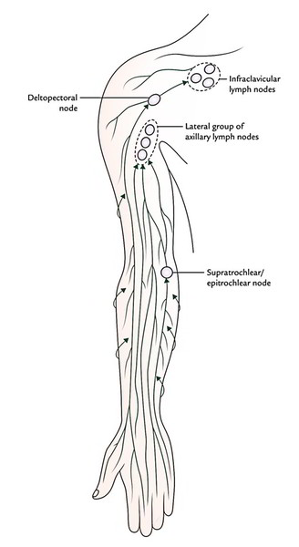 Which Area Of The Arm Drains To The Epitrochlear Nodes
