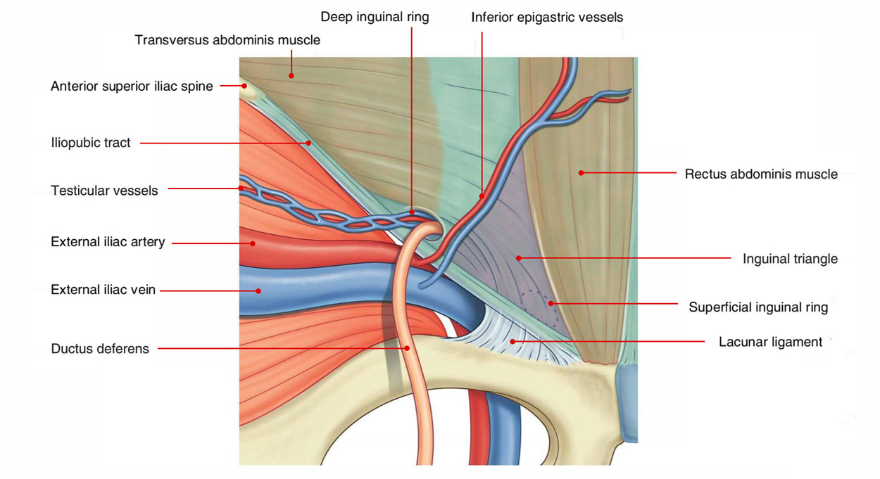 hight resolution of inguinal triangle hesselbach s triangle