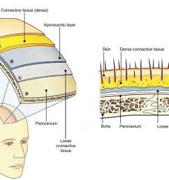 scalp [ 1250 x 869 Pixel ]
