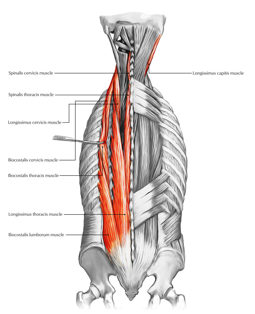 hight resolution of muscles of the back erector spinae muscles