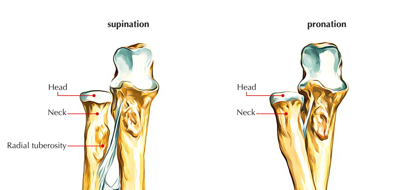 hight resolution of upper end radius bone