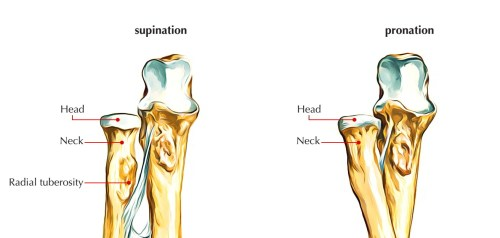 small resolution of upper end radius bone