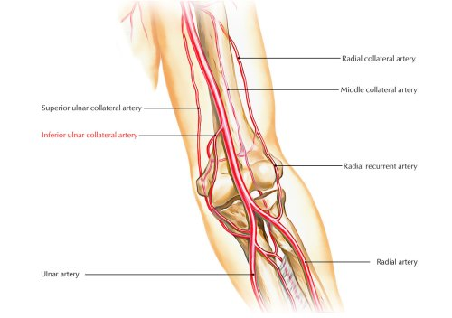 small resolution of inferior ulnar collateral artery
