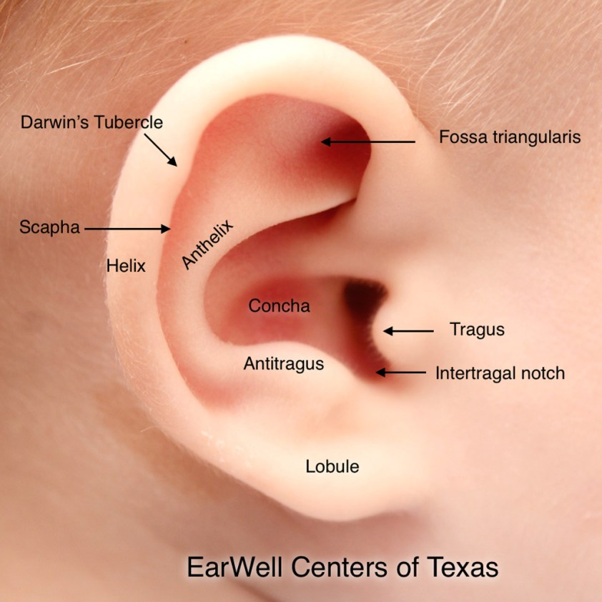 Infant Ear Deformities and Malformations - EarWell Centers ...
