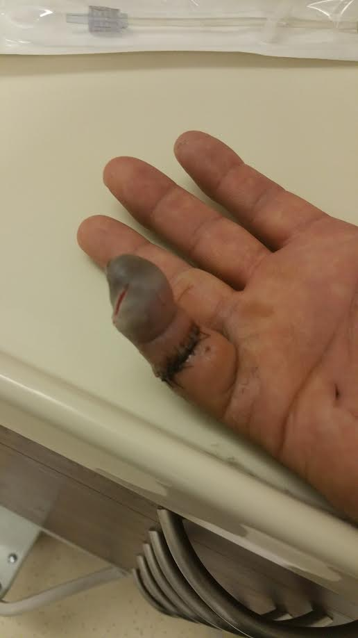 Maan Singh Khalsa's pinky finger may need to a amputated as a result of being attacked by three men in Richmond on Sept. 25.