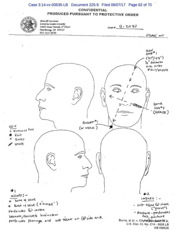 Sketches from the autopsy of Charles Burns, 21, which show the path of thebullet that entered through the top of Burns' skull and lacerated his cerebellum and brainstem.