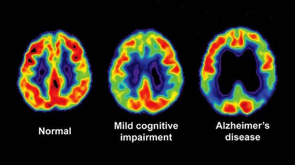 Amyloid PET Scan imaging, which detects the plaques that cause Alzheimer's Disease in the brain, is a crucial diagnostic tool that remains uncovered by insurance companies.