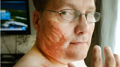 Wayne Ingold suffered life-changing burns to his face, hands and neck.