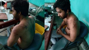 Assam doctor assault case: NHRC seeks action-taken report