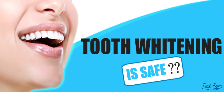 Is Teeth Whitening Safe - East River Dental Care - Newmarket - Canada - Ontario