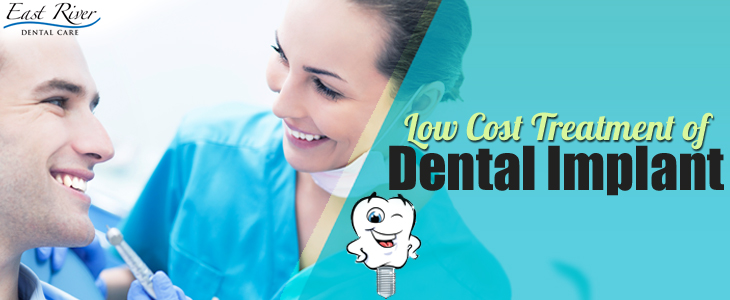 Tips On Finding Low Cost Dental Implants Treatment