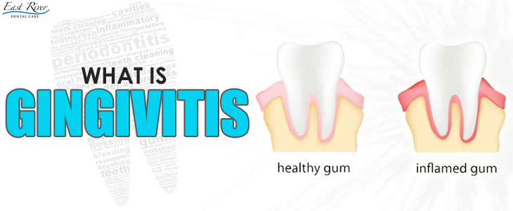 What Is Gingivitis And How To Deal With It?