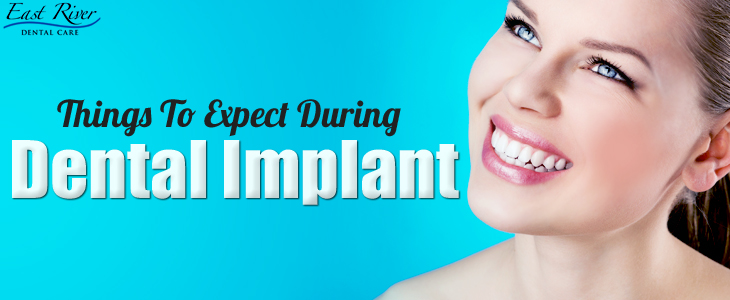 Things To Expect During A Dental Implant Procedure