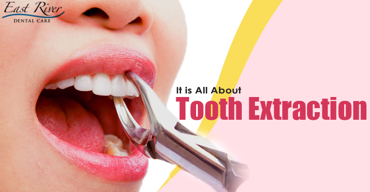 All About Tooth Extractions - Newmarket Dentist - East River Dental Care