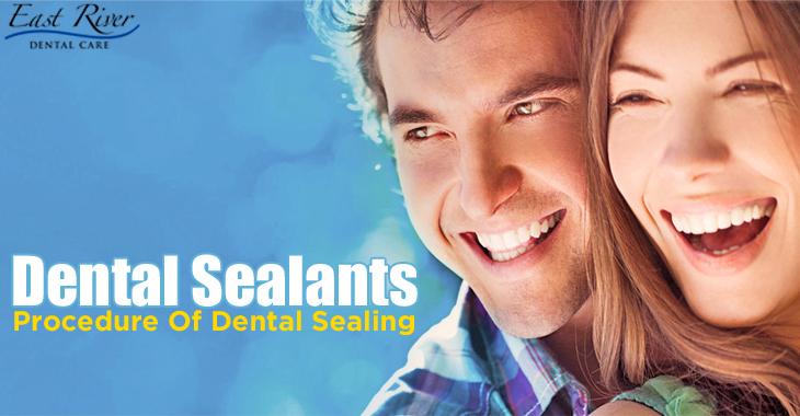 Dental Sealants and Procedure of Dental Sealing - Emergency Dentist Newmarket - East River Dental Care