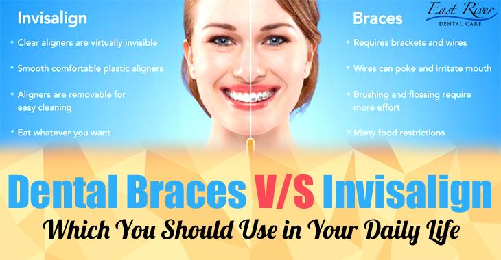 Invisalign Or Braces - Newmarket Dentist - East River Dental Care