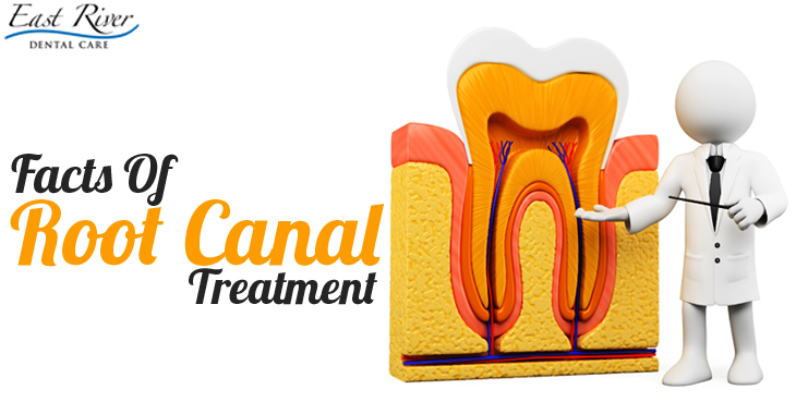 Root Canal Treatment – Know The Facts - Root Canal Treatment Newmarket - East River Dental Care