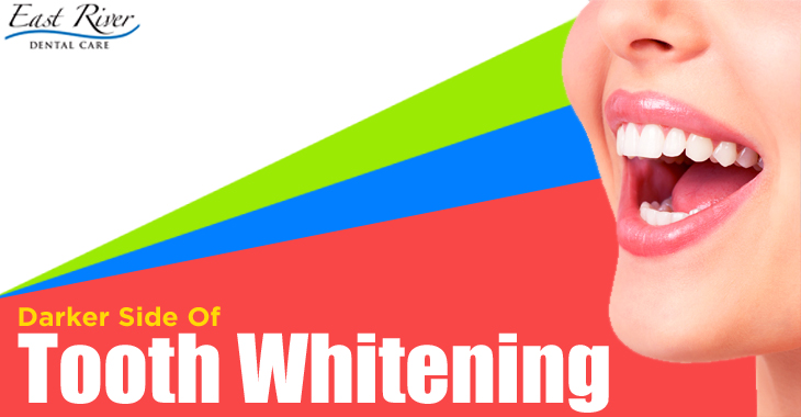 Teeth Whitening The Darker Side - East River Dental Care - Tooth Whitening Newmarket