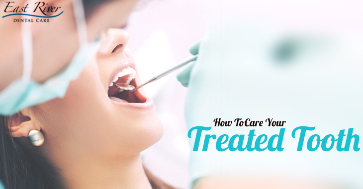 How to Care for your Treated Tooth - Newmarket Dentist - East River Dental Care