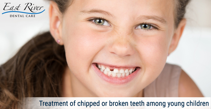 Treatment of chipped or broken teeth among young children