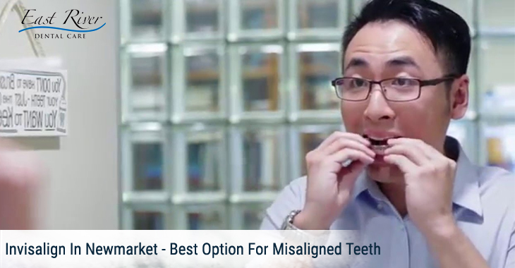 Invisalign In Newmarket – Best Option For Misaligned Teeth