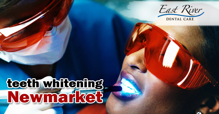 zoom teeth whitening instructions