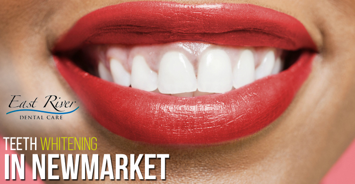 Benefits of Visiting a Teeth Whitening Clinic