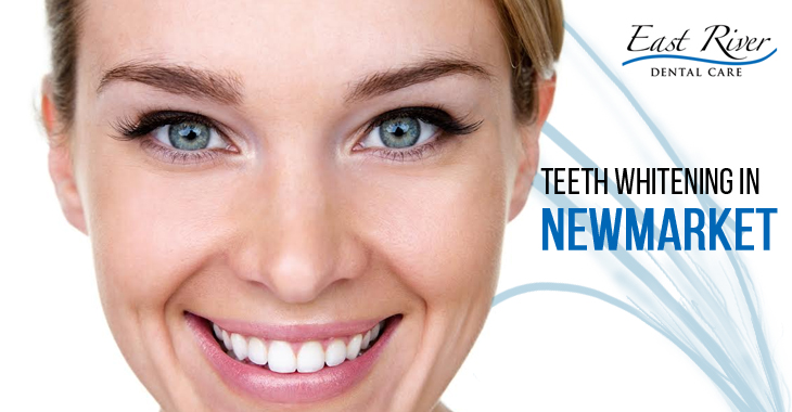 Why Go For a Teeth Whitening Treatment?