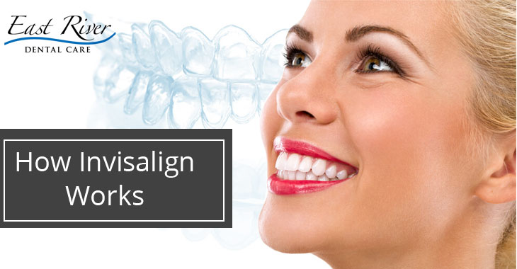 Why Invisalign Works