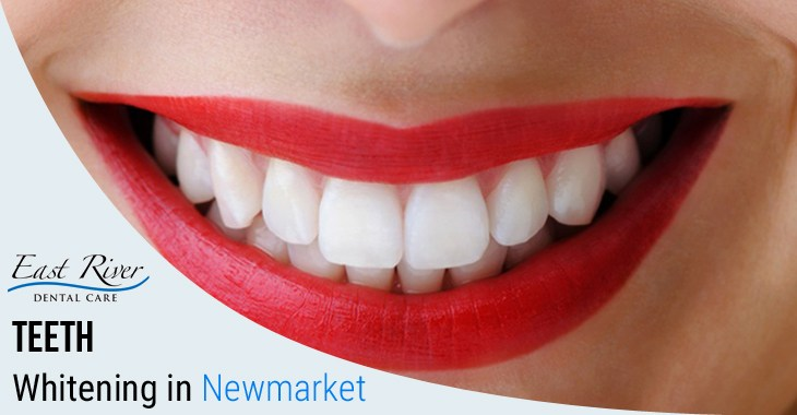 Visiting a Teeth Whitening Clinic Newmarket