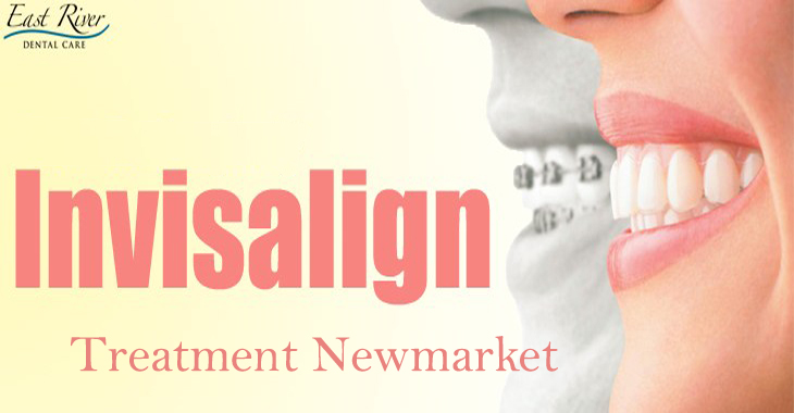 InvisalignTreatment Newmarket