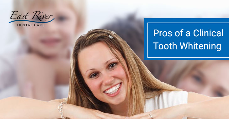 What are the Pros of a Clinical Tooth Whitening?