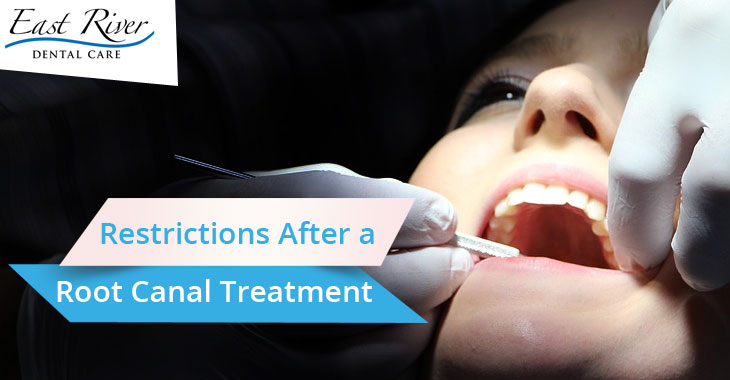 Restrictions After a Root Canal Treatment