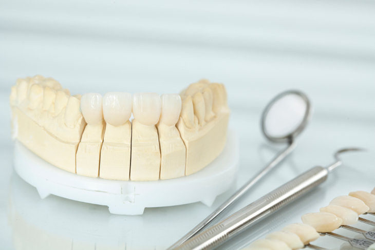 What Are Dental Veneers and How Can They Help Your Smile?